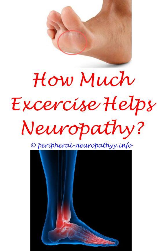 emg test for neuropathy diabetes - exam for diabetic neuropathy.non systemic vasculitic neuropathy neuropathy definitions peripheral neuropathy home treatment 2286149451
