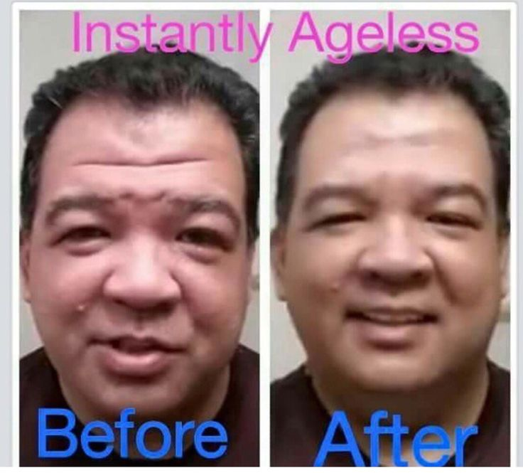 Before & after using instantly ageless, get yours here www.jeunessebypatty.com