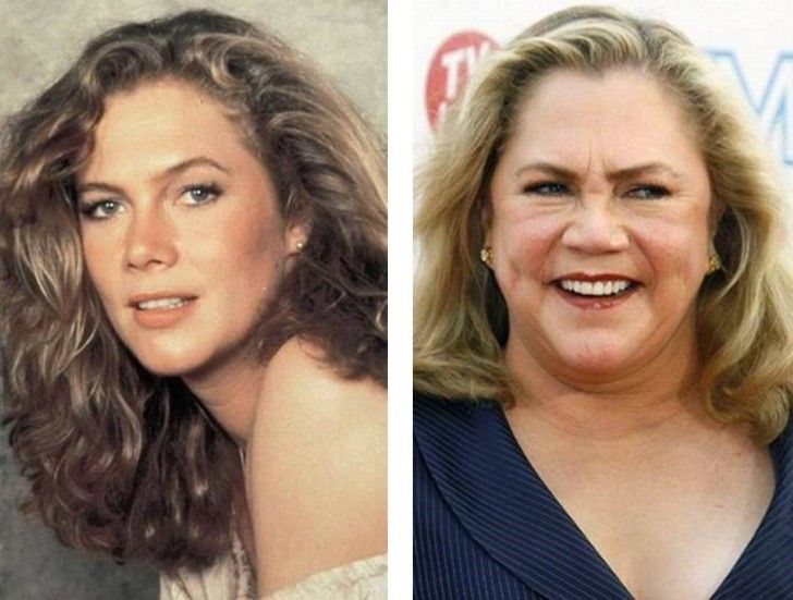 Kathleen Turner Rising to fame in the early 1980s after her role in Body Heat, turner was considered a kind of sex symbol all throughout the 80s and early 90s. But those days are long gone now, with both Kathleen's career and her good looks going down the drain.