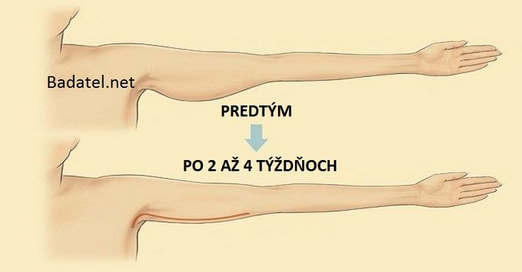 Nepáči sa vám uvoľnená a ovisnutá pokožka na horných častiach vašich paží? Týchto 5 cvikov ju zaručene stiahne a ruky krásne vyformuje.