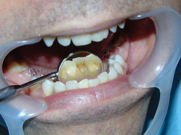 detartraj 04   dentist-who