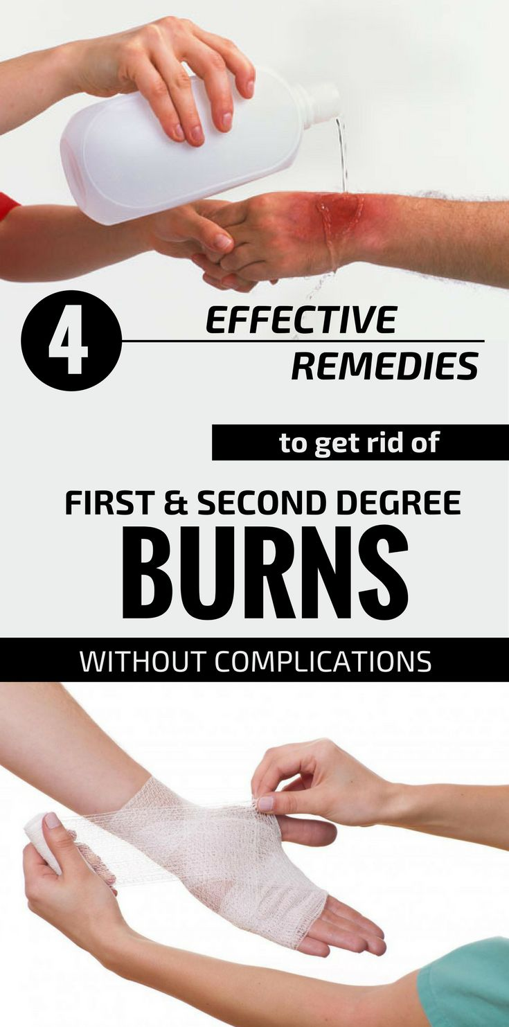 4 effective remedies to get rid of first and second degree
