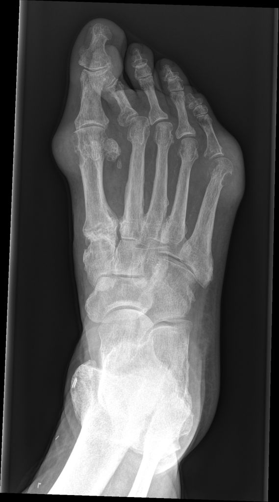 """Gout is a crystal arthropathy due to deposition of monosodium urate crystals in and around the joints.  The typical appearance is the presence of well-defined """"punched-out"""" erosions with sclerotic margins in a marginal and juxta-articular distribution, with overhanging edge.  http://radiopaedia.org/articles/gout"""
