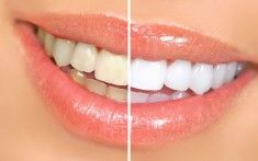 Whiter Teeth ~Baking Soda and Lemon... This may be one of the most popular of the natural teeth whitening home remedies. The chemical reaction of baking soda with the citrus of lemon juice has a smile-brightening effect.  Either one of these ingredients works well, but together they are super-effective... Sure hope this works!