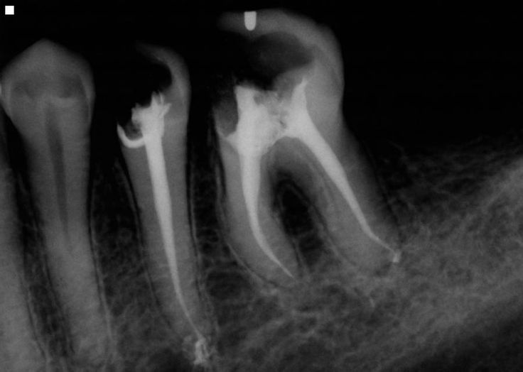 How A Root Canal Could Be Making You Sick