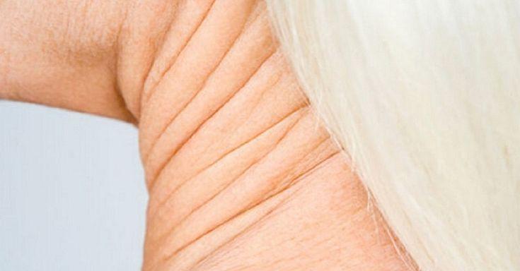 как быстро подтянуть дряблую кожу