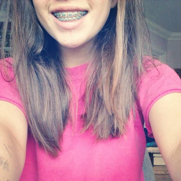 How To Deal With Braces  Braces Girls, Brace Face, Cute -8351