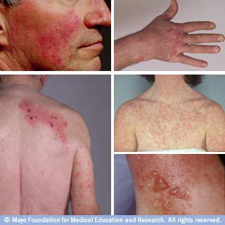 Pictures of rosacea, psoriasis, drug rash, contact dermatitis, shingles
