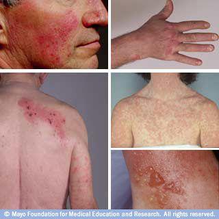 Pictures of rosacea, psoriasis, drug rash, contact dermatitis, shingles