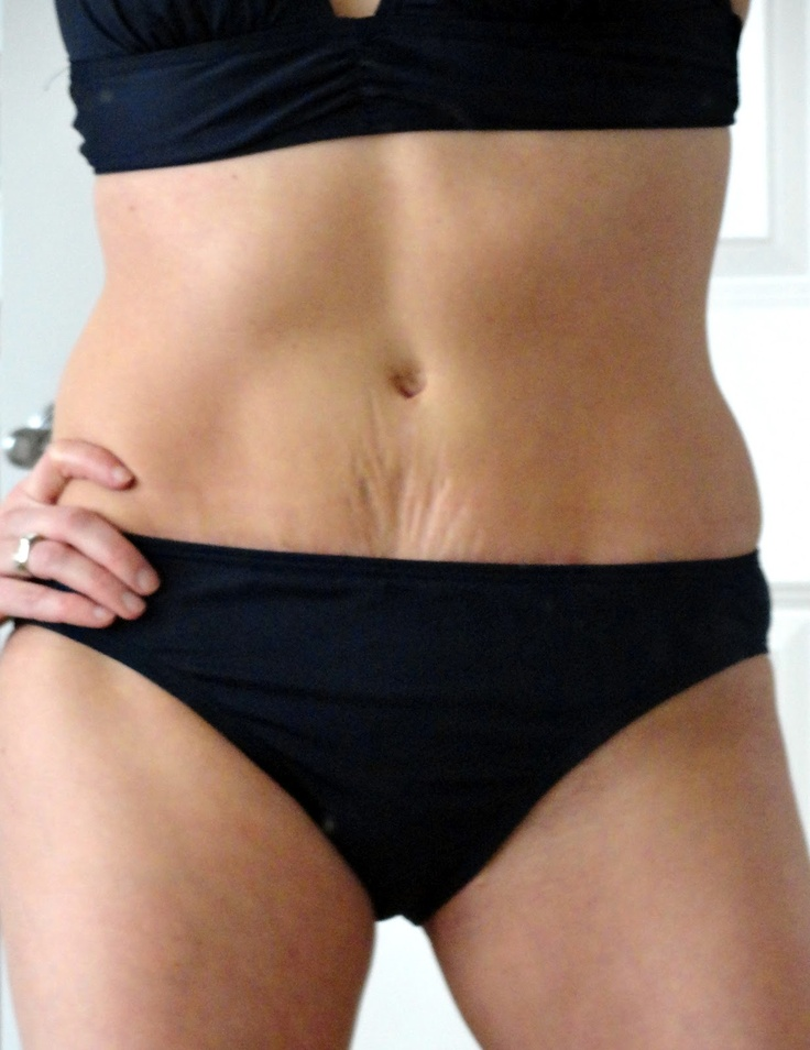 15 Best Treating C Secion And Tummy Tuck Scars Images On