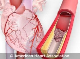 Warning Signs of a Heart Attack: As with men, women's most common heart attack symptom is chest pain or discomfort. But women are somewhat more likely than men to experience some of the other common symptoms, particularly shortness of breath, nausea/vomiting, and back or jaw pain. Learn about the warning signs of heart attack in women...