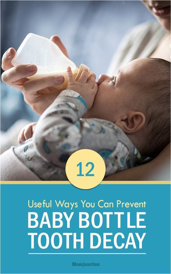 12 Useful Ways You Can Prevent Baby Bottle Tooth Decay