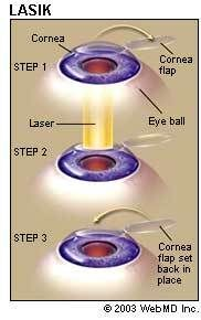 LASIK Laser Eye Surgery: Procedure, Recovery, and Side Effects #lasik, #eye, #surgery, #laser, #vision, #correction, #cornea, #recovery, #eyesight, #glasses, #contacts http://philippines.remmont.com/lasik-laser-eye-surgery-procedure-recovery-and-side-effects-lasik-eye-surgery-laser-vision-correction-cornea-recovery-eyesight-glasses-contacts/  # LASIK Eye Surgery LASIK. which stands for laser in-situ keratomileusis, is a popular surgery used to correct vision in people who are nearsighted…
