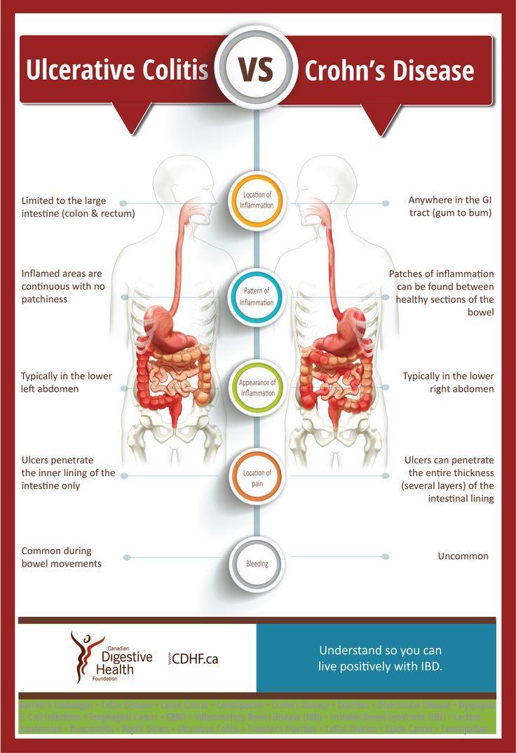 Inflammatory Bowel Disease Ibd Is At Least Two Separate