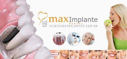 Clinica de Implantes Dentarios Maximplante Carga Imediata - Implantes Sem Cortes
