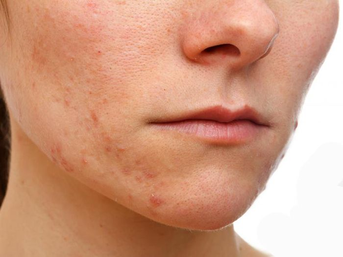 Treatments for improving your facial eczema may be self-care methods or prescription based