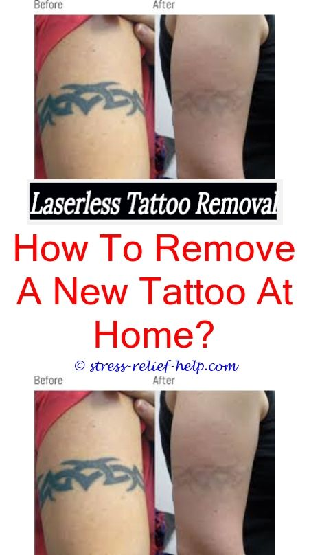 Laser Tattoo Removal How Bad Is Tattoo Removal Who Gets Tattoo