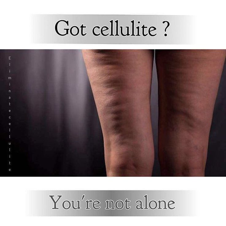 Follow @lazygirlsquat For Best exercises & tips to get rid of cellulite . You can reduce cellulite by working the muscles in the legs and butt. These anti-cellulite exercises will be a great help.This page is dedicated for you Ladies .@lazygirlsquat@lazygirlsquat@lazygirlsquat@lazygirlsquat ADD OUR SNAPCHAT :  Anticellulite  Anticellulite   (healthyfoodadvice)  The post Follow @lazygirlsquat For Best exercises & tips to get rid of cellulite . You can reduce cellulite by working the muscles…