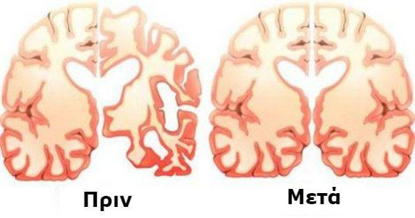 Η Δρ. Μαίρη Newport έχει μια θεωρία ότι τα σώματα κετόνης, τα οποία παράγει ο οργανισμός όταν χωνεύει λάδι καρύδας, ότι μπορεί να είναι ένα εναλλακτικό καύ