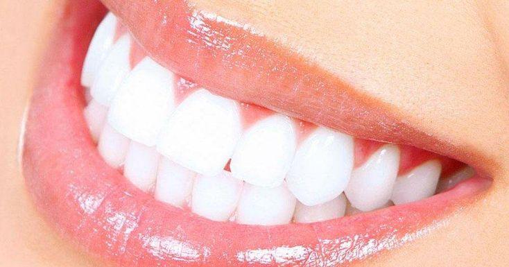 Preguntas frecuentes sobre el blanqueamiento dental láser