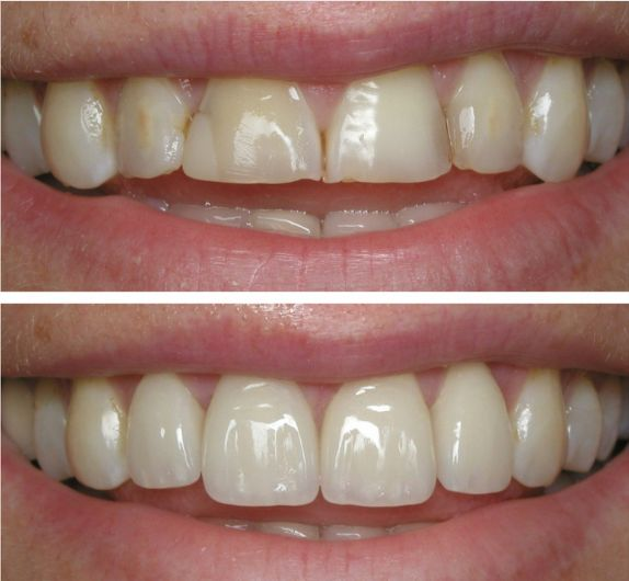 Dental veneers (sometimes called porcelain veneers or dental porcelain laminates) are wafer-thin, custom-made shells of tooth-colored materials designed to cover the front surface of teeth to improve your appearance. These shells are bonded to the front of the teeth changing their color, shape, size, or length. Dental veneers can be made from porcelain or from resin composite materials. Porcelain veneers resist stains better than resin veneers and better mimic the light reflecting properties…