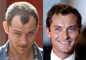 How Much Does Bosley Hair Restoration Cost? #bosley #hairrestoration #judelaw