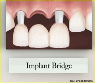 A dental bridge is a fixed appliance that replaces missing teeth by utilizing the remaining or existing teeth as abutment or support. #dental_bridge http://myoakbrookdentist.com/procedures/restorative-dentistry/fixed-dental-bridges/