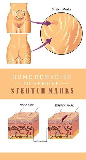 how to make stretch marks fade faster