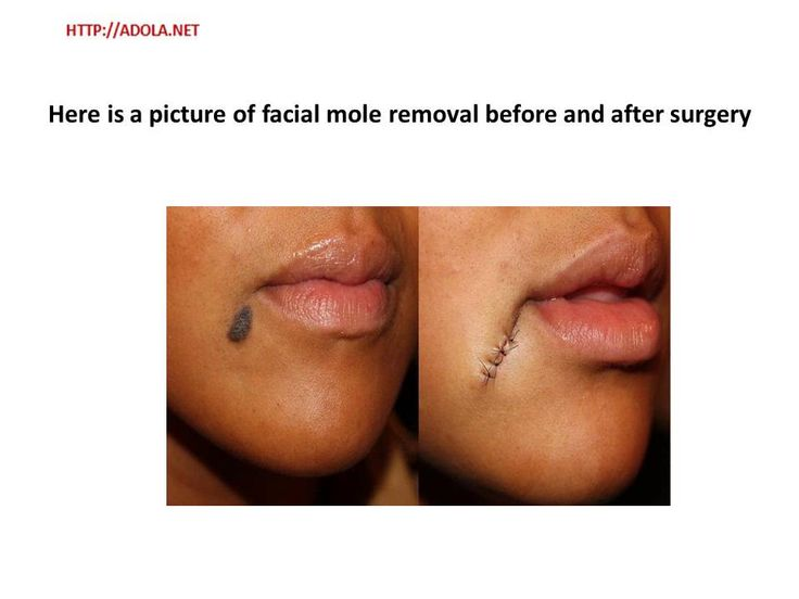 Facial mole removal nhs — photo 5