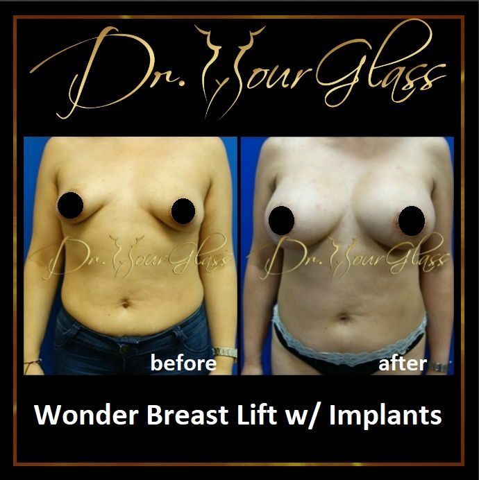 "There are so many reasons why some women have saggy breasts. It may be due to aging, past pregnancies or even weight loss. Worry no more as today there is a procedure called ""Wonder Breast Lift w/ Implant"" which is a great solution to your problem. Check out her awesome result above:"