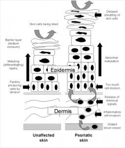 Psoriasis Diagram with article.
