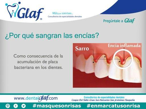 ¿Sabes por qué te sangran las encías?  #PregúntaleaGlaf #dentista #df #salud #belleza