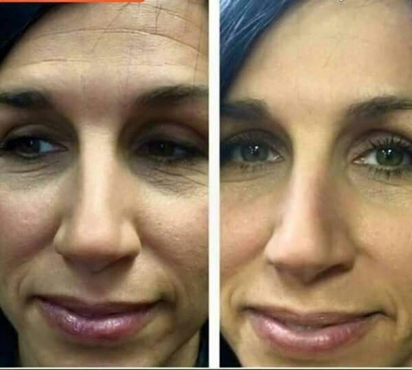 Nerium results