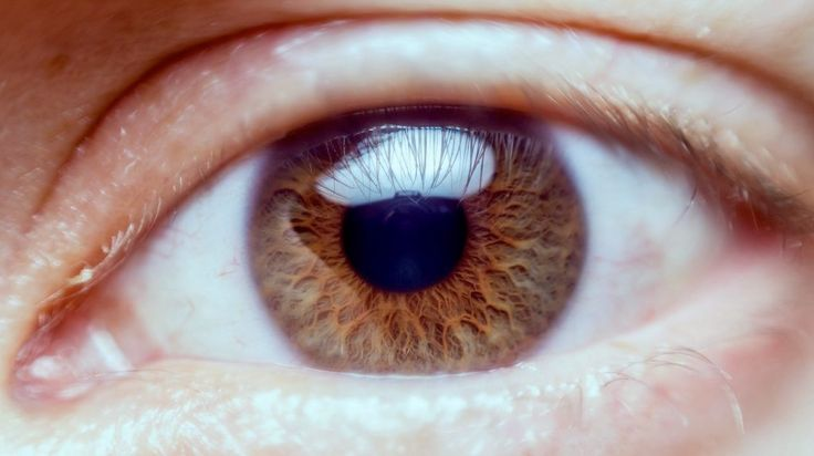 Dry Eyes - Dry eye can be caused by screen time, a dry environment, medication and treatments, air travel, meibomian gland dysfunction, autoimmune disease and more. The way we live today managing dry eye is more important than ever....