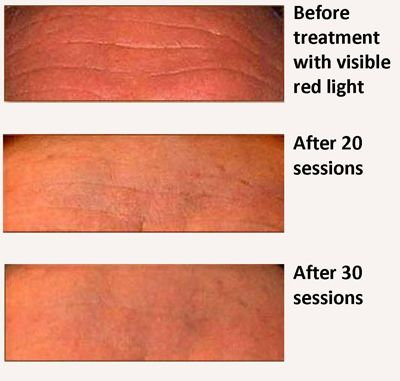 49 Best Red Light Therapy Before And After Images On Pinterest