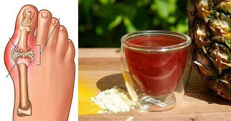 Este remedio elimina el ácido úrico, el dolor en las articulaciones y a la gota.. !!