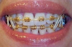 gold braces by mercedes