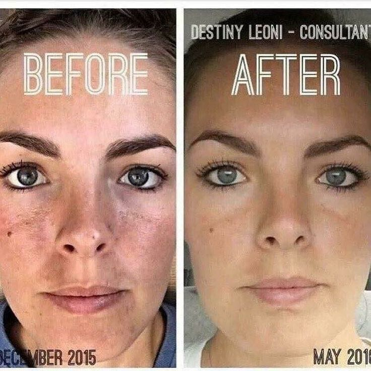 "REVERSE + AMP Roller & UNBLEMISH   Pictured is Destiny Leoni and here is what she had to say... ""Hey everyone! I haven't shared personal progress in a while, so here we go! Yes, I use the products and believe in them! I'm so pleased with how far my skin has come and can't wait to keep going! The only makeup I'm wearing in these pics is a little mascara... nothing on my face. I've stopped using foundation/concealer completely. I've primarily been a twice daily REVERSE regimen and eye cream…"
