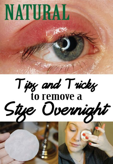 Natural Tips and Tricks to remove a Stye overnight - Beautyful Me