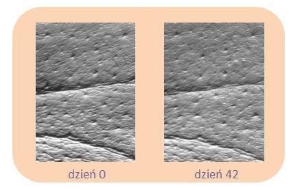 """W ciągu testów in vivo aż 78% badanych używających formułę TimeCode™ w celu redukcji tzw. """"kurzych łapek"""" potwierdziło redukcję średniej wielkości zmarszczek, a aż 61% badanych zauważyło widoczną redukcję nawet głębokich zmarszczek.*   * Badania in vivo przeprowadzone w okresie 42 dni na grupie 20 osób (średnia wieku 56 lat)"""