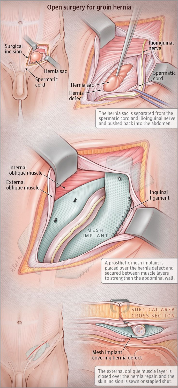 Groin Hernia Repair by Open Surgery JAMA. 2017;318(8):764. doi:10.1001/jama.2017.9868