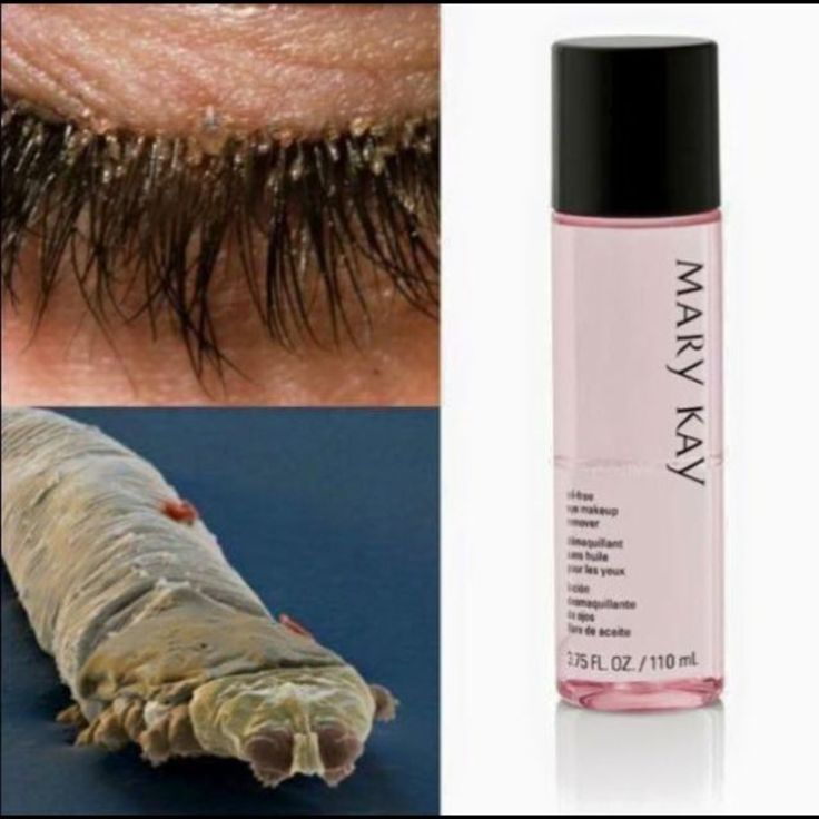 Are you sleeping with your mascara on? Eyelash mites are ...