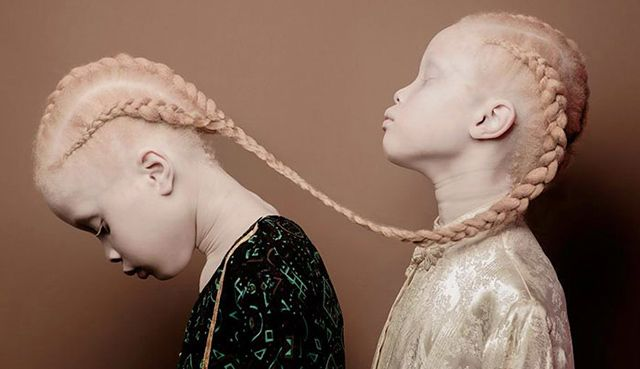 Lara and Mara Bawar are not your average supermodels, but their striking appearance is sending shockwaves through the fashion industry. The 11-year-old twins from São Paulo, Brazil, have albinism, a condition that causes a lack of skin and hair pigment, and they embrace it to the fullest.