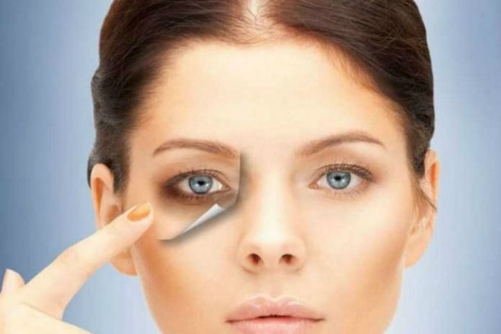 Cosmetics and creams work temporarily on persistent and resilient dark circles. Coconut oil for Dark Circles is a natural remedy that heals your strained