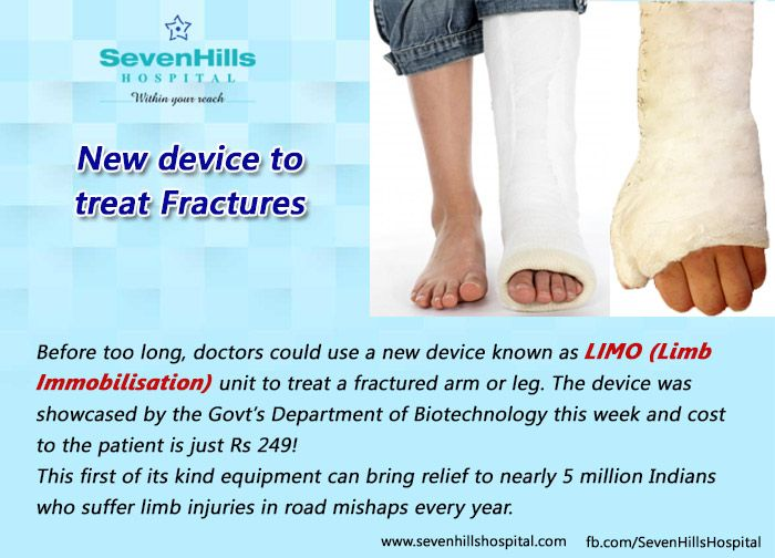 Doctors could use a new device known as LIMO (Limb Immobilisation) unit to treat a fractured arm or leg. #LIMO #Limb_Immobilisation #fractured_arm_leg