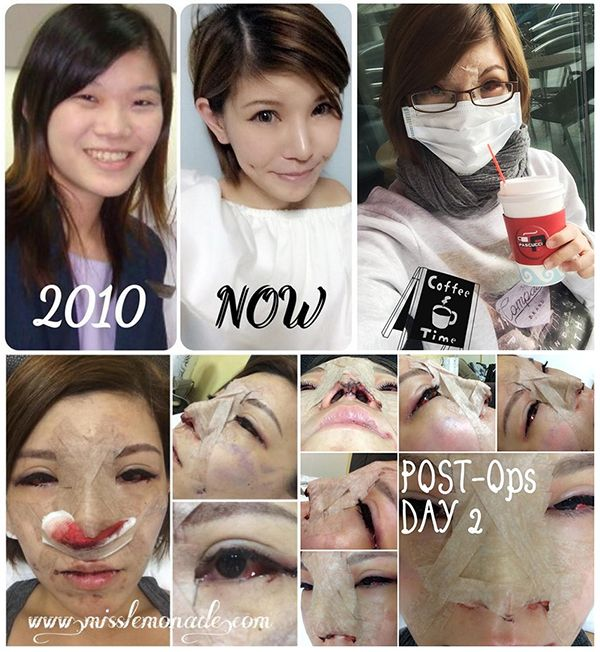 Korean Plastic Surgery | How to get Perfect Skin