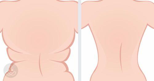 6 gyakorlat, ami garantáltan segít a háton lévő zsír leolvasztásában! - Ketkes.com