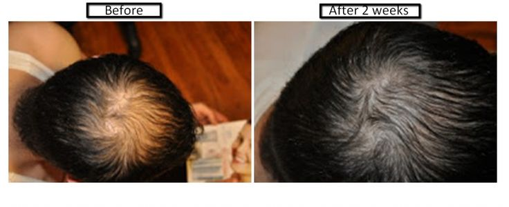 Reverse Hair Loss with Cellular Rejuvenating Serum by Luminesce!