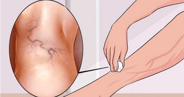 This NATURAL Ingredient Will Help You Get Rid of Varicose Veins in Just 3 Days!-Both man and woman are affected by this health problem.This health problem is usually found in our legs and ankles. Varicose veins come as a result of damaged valves and veins, due to excess weight, lack of exercise, injuries, blood clots, pregnancy, and if you stand or sit for a long