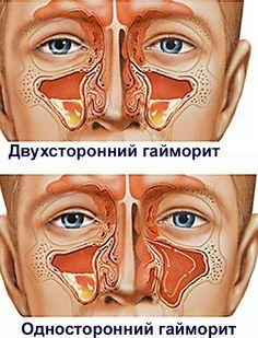 Гайморит — описание и лечение в домашних условиях - http://www.doctorate.ru/sinusitis-description-treatment-home/